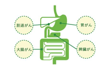 消化器がんスクリーニング [マイクロアレイ血液検査] 胆管がん・異端・膵臓がん・大腸がん・